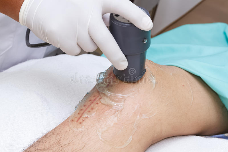 Physiotherapist is applying ultrasound therapy on the knee. Closeup physiotherapist is applying ultrasound therapy on the knee royalty free stock image