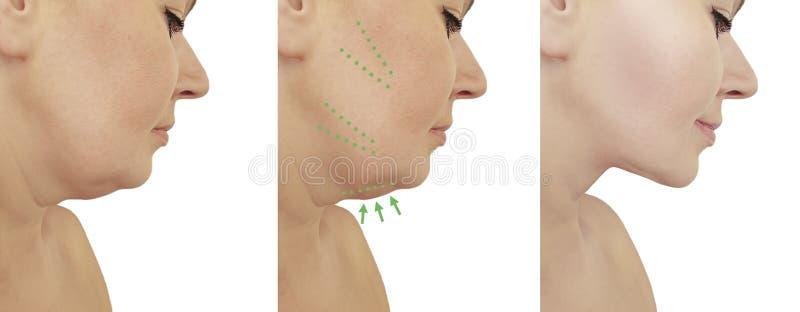 Piękny kobieta dwoistego podbródka dźwignięcie przed i po korekcji liposuction procedureslifting obraz royalty free