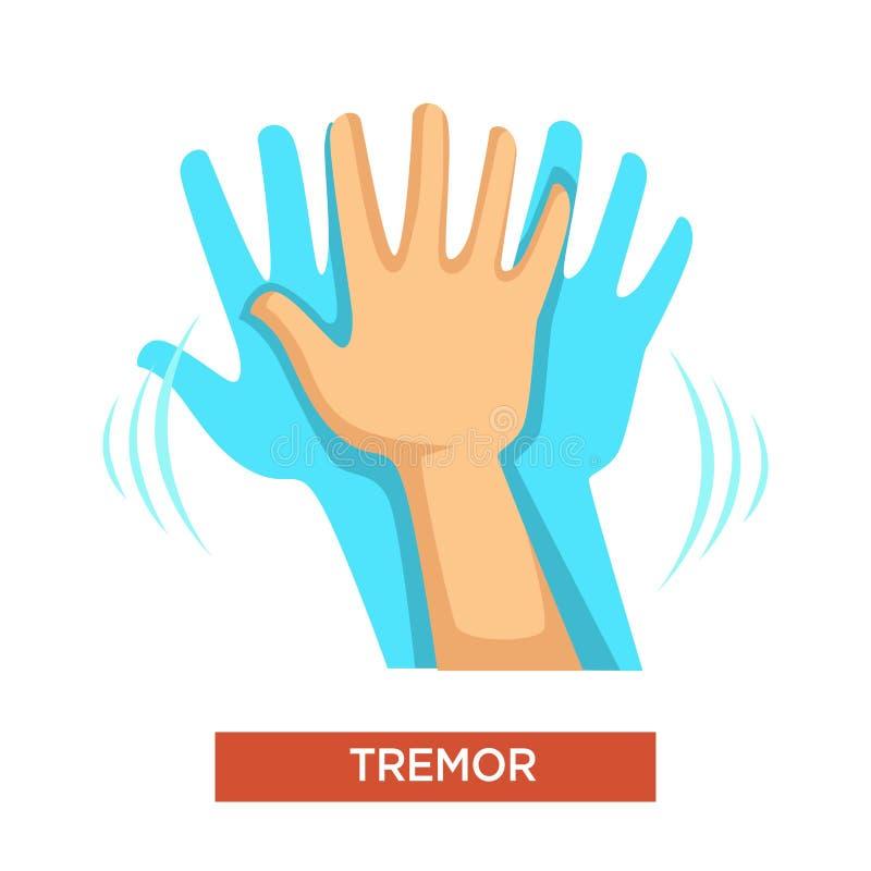 Pièce de corps humain de désordre neurologique de tremblement de main illustration de vecteur