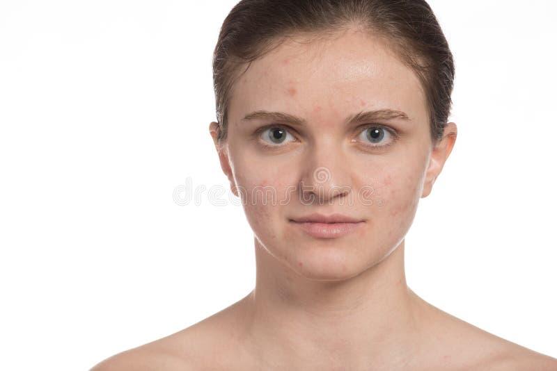 Piękna dziewczyna z czerwonym i białym trądzikiem na jej twarzy Przerwa trądzik dalej obrazy stock
