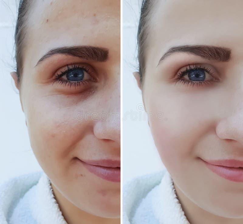 Piękna dziewczyny twarz marszczy przed i po procedurą, trądzik medycyny pacjent fotografia royalty free
