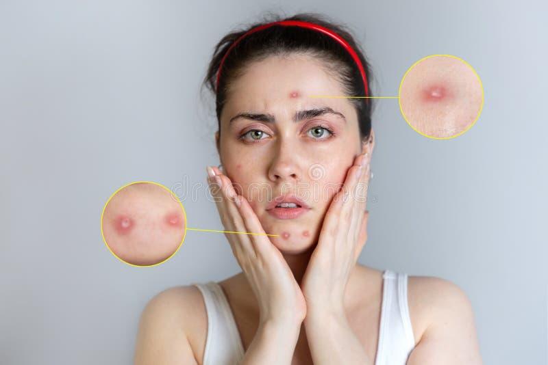 Piękna młoda kobieta dostaje spęczenie o trądziku na jej twarzy Pojęcie trądzik i kosmetologia, narastający w górę Wzrost obrazy stock