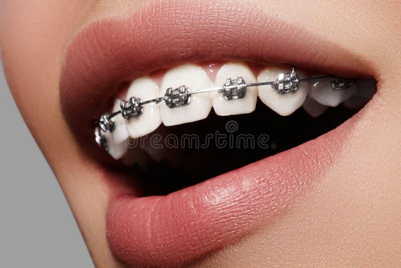 Piękni biali zęby z brasami Stomatologicznej opieki fotografia Kobieta uśmiech z ortodontic akcesoriami Orthodontics traktowanie obrazy stock