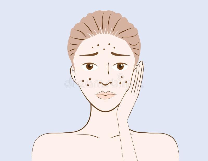 Piękno kobiety problemową trądzik skórę ilustracja wektor