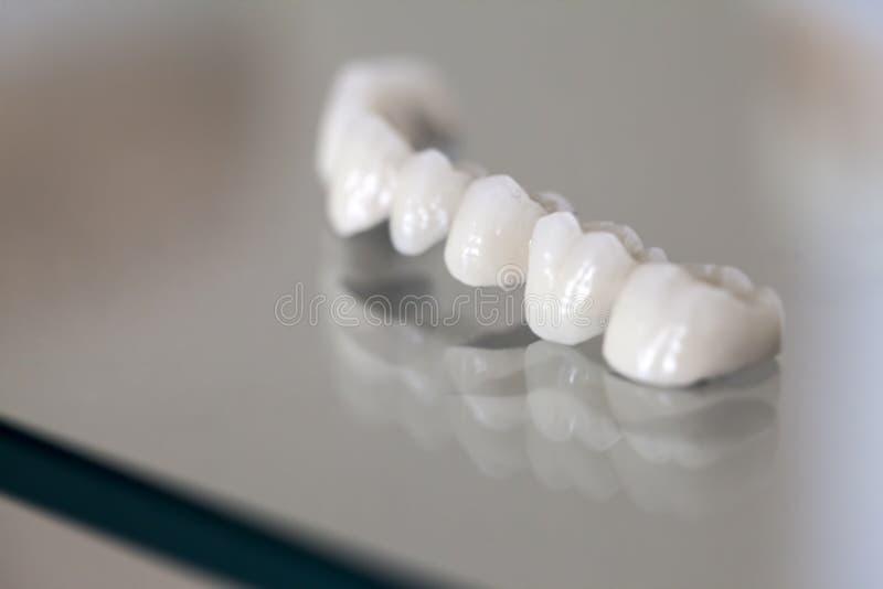 Piatto del dente della porcellana dello zirconio fotografia stock