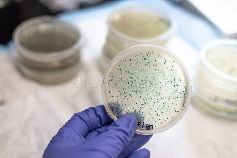 Piatto di cultura batterico che tiene a disposizione fotografia stock libera da diritti