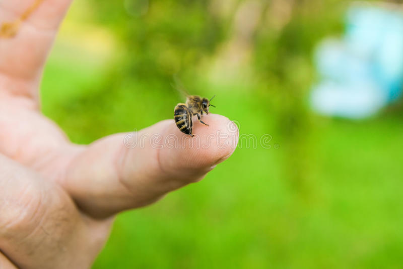 Picada de abelha no dedo humano da mão imagem de stock