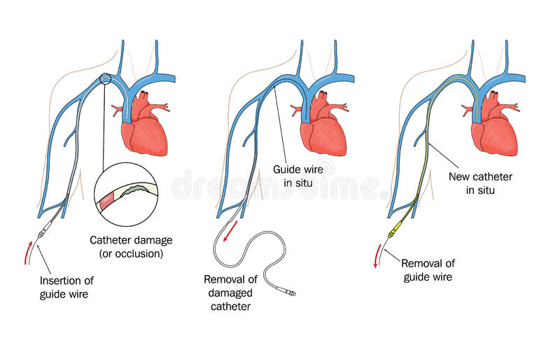 PICC replacement. Drawing to show replacement of a damaged peripherally inserted central catheter (PICC vector illustration