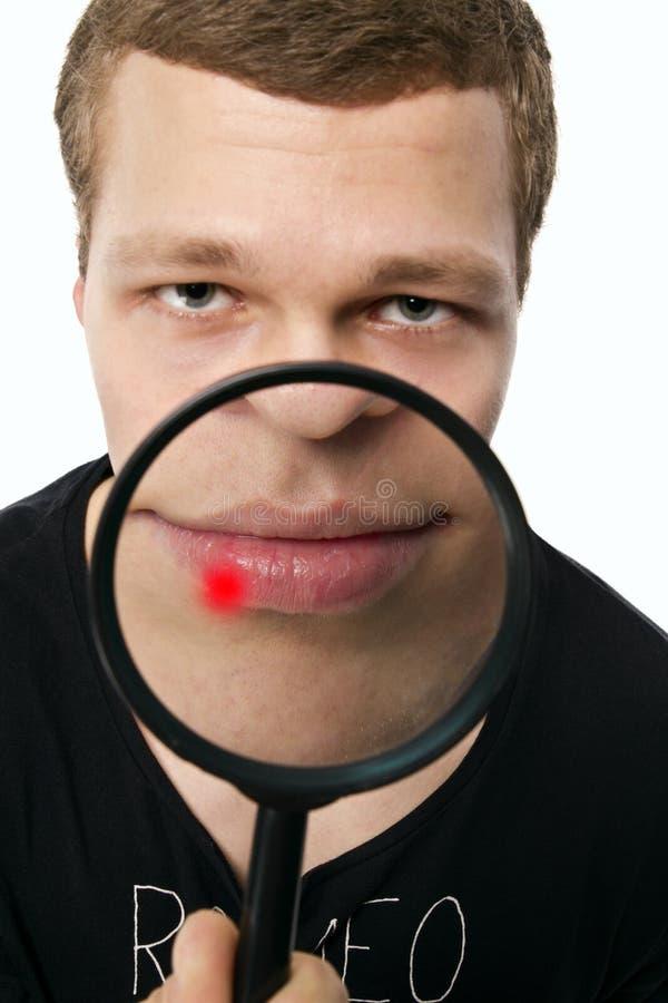 Pickel auf Lippe lizenzfreie stockfotografie