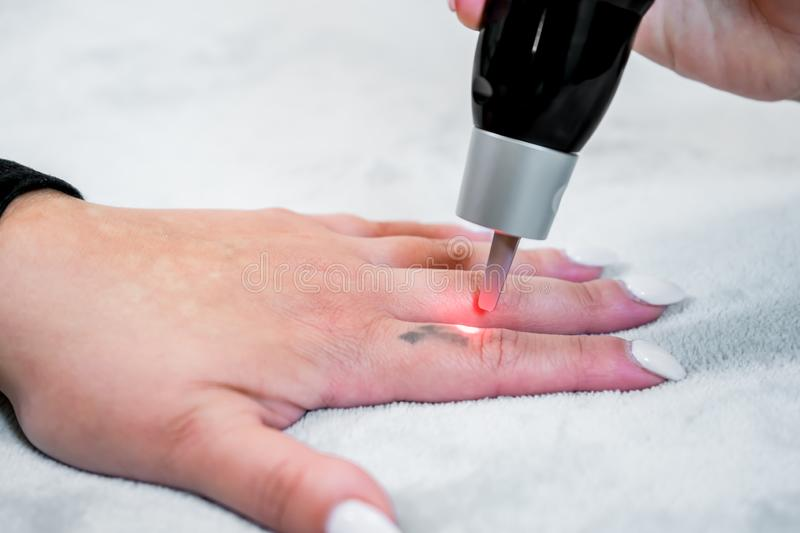 Picosecond laser tattoo removal on a small black tattoo on a patient`s finger, in a skincare clinic, with a beautician administeri stock photography
