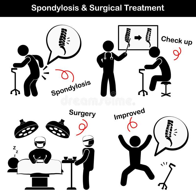 Pictogramme de spondylose et de Spondylolisthesis et de traitement chirurgical (le vieil homme souffrent à la douleur lombo-sacré illustration libre de droits