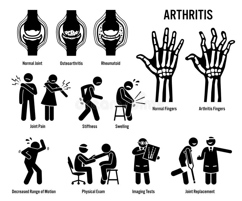 Arthritis, Joint Pain, and Joint Disease Icons. Pictograms depict arthritis signs, symptoms, diagnosis, and treatment. Icons include bones for osteoarthritis vector illustration