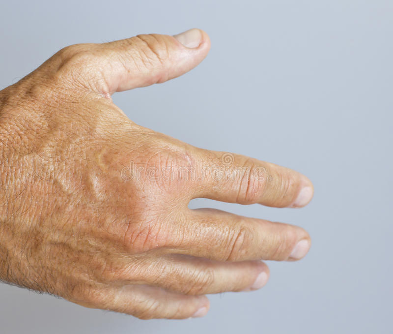 Download A Picture Of Swollen Male Hand Stock Photo - Image: 26896262
