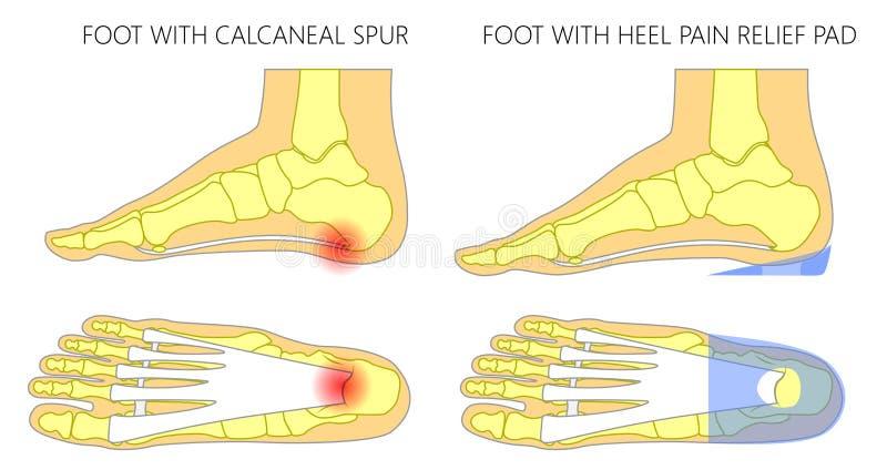 Pie plano con el cojín ortopédico del alivio del dolor del insole_Heel stock de ilustración