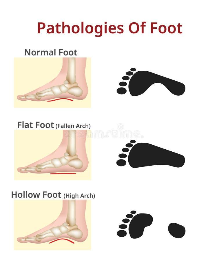 Pied de pathologies de pied, normal, plat et creux - illustration de vecteur illustration libre de droits