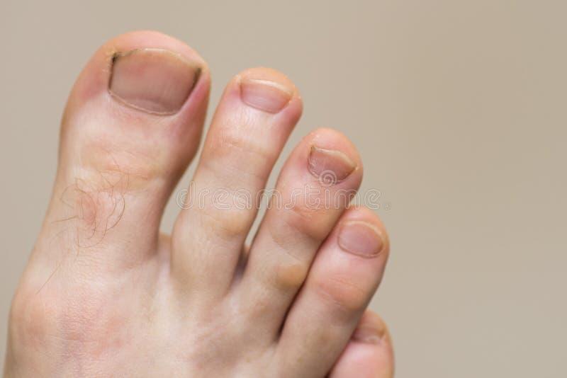 Pied masculin avec des symptômes de plat fongique de clou Clous sur les jambes de l'homme Pied caucasien avec sale et des clous images libres de droits