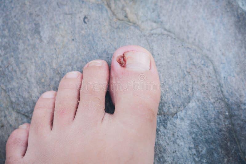 Piede con il chiodo incarnito infettato del dito del piede su un fondo grigio immagini stock