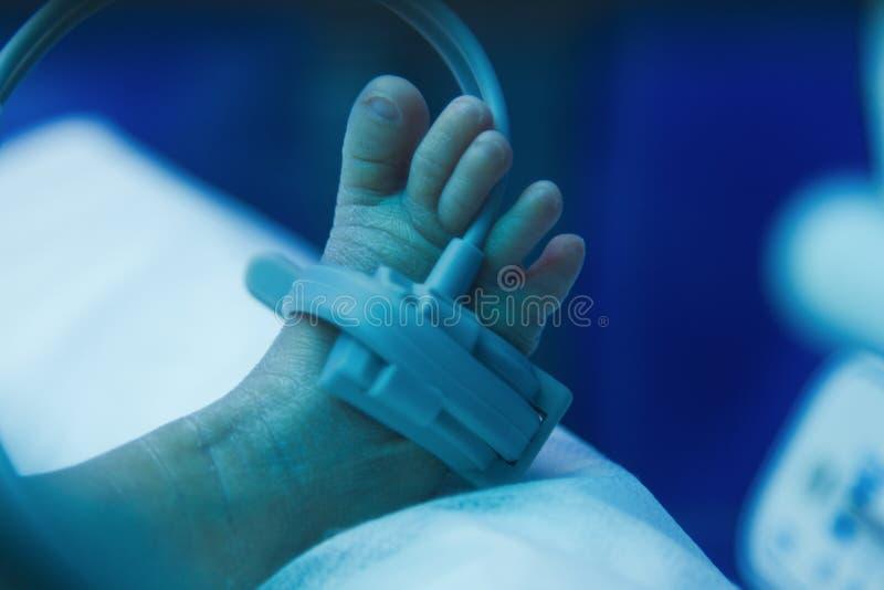 Piede del bambino prematuro sotto la lampada ultravioletta immagine stock libera da diritti