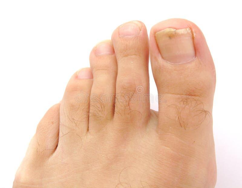 Piede e dita del piede maschii con il chiodo nocivo isolato fotografie stock