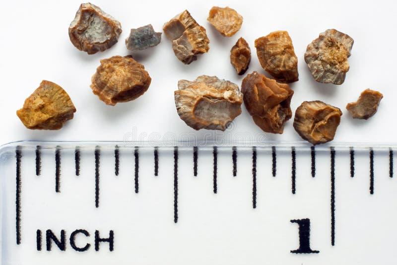 Piedras de riñón fotografía de archivo