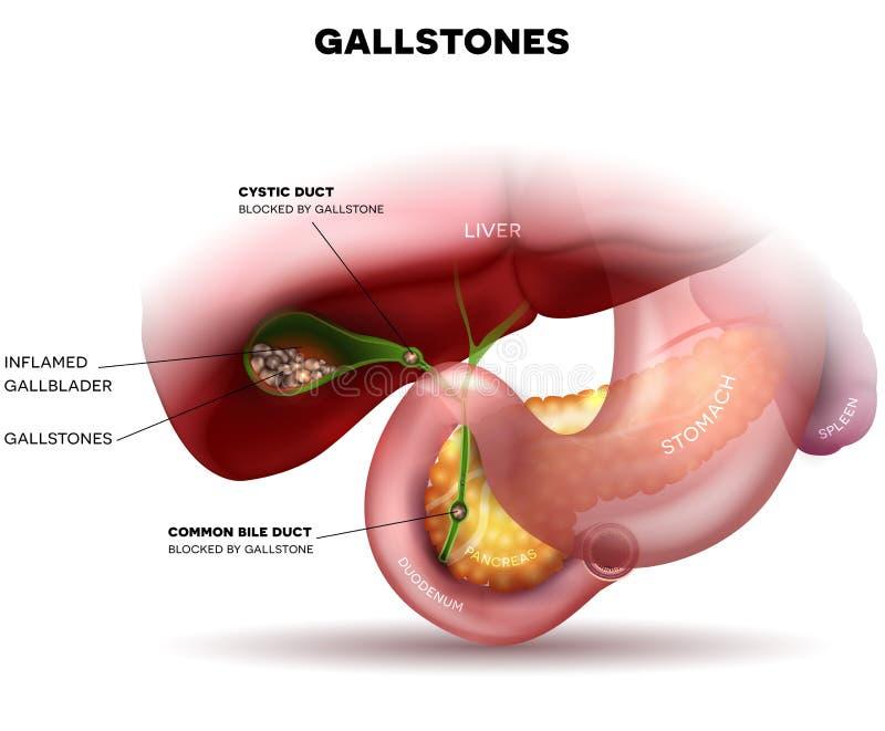 Piedras en la vesícula biliar y el conducto ilustración del vector