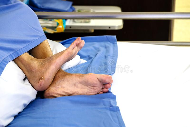 Pieds de patients de paralysie sur le lit d'hôpital photo stock