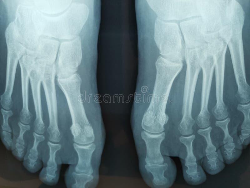 Pieds de radiographie - pattes de pied image libre de droits