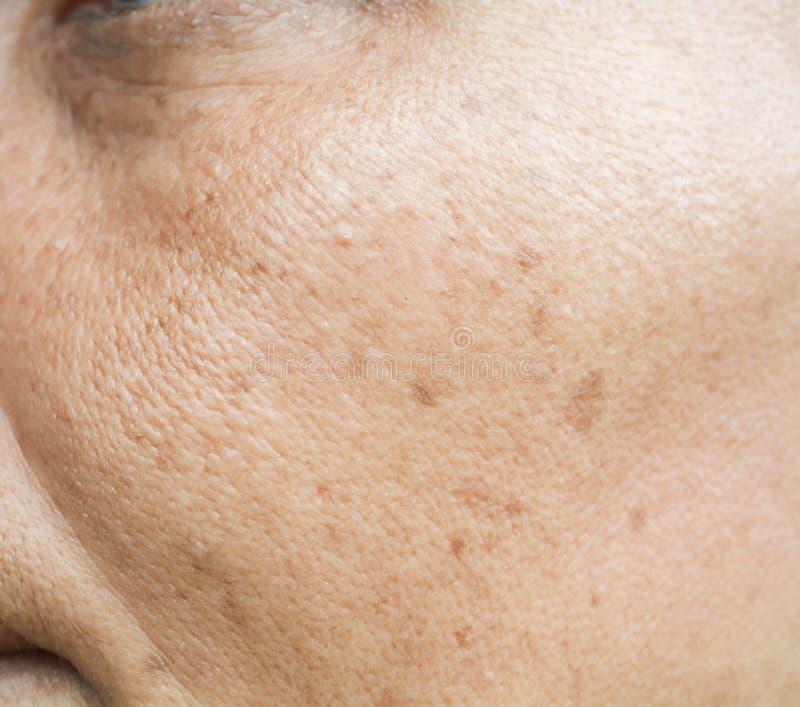 Piegi na pores i twarzy obraz stock