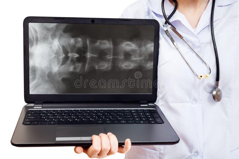 Pielęgniarka trzyma komputerowego laptop z dordzeniową kolumną zdjęcia royalty free