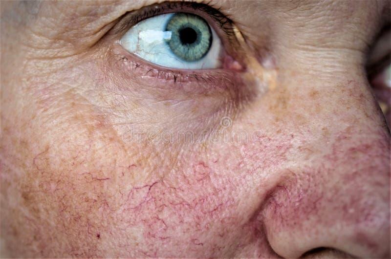 Piel de la cara de la mujer con las estrellas y el couperose vasculares foto de archivo