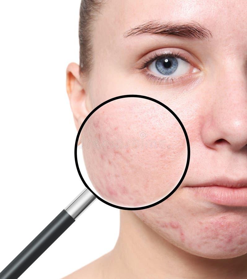 Piel del ` s de la mujer joven que magnifica con problema del acné foto de archivo