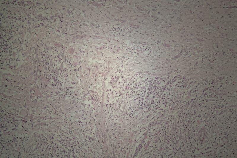 Piel humana con el carcinoma de células escamosas imágenes de archivo libres de regalías