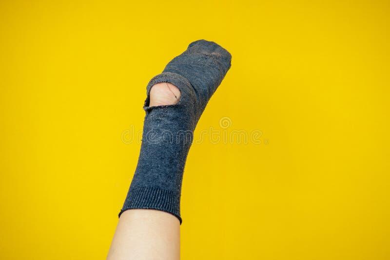 Piel olorosa vieja llena de agujeros en la pierna sobre un fondo amarillo. imagen de archivo libre de regalías