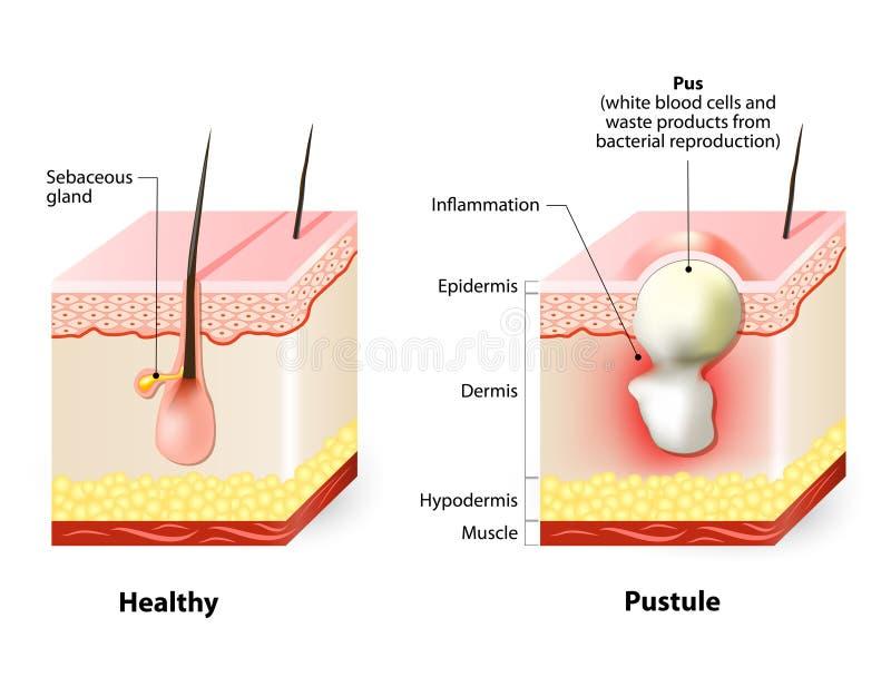 Piel y pústulas sanas stock de ilustración
