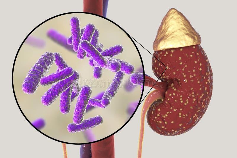 Pielonefrite, concetto medico e punto di vista dei batteri, l'agente causativo comune del primo piano dell'infezione del rene illustrazione di stock