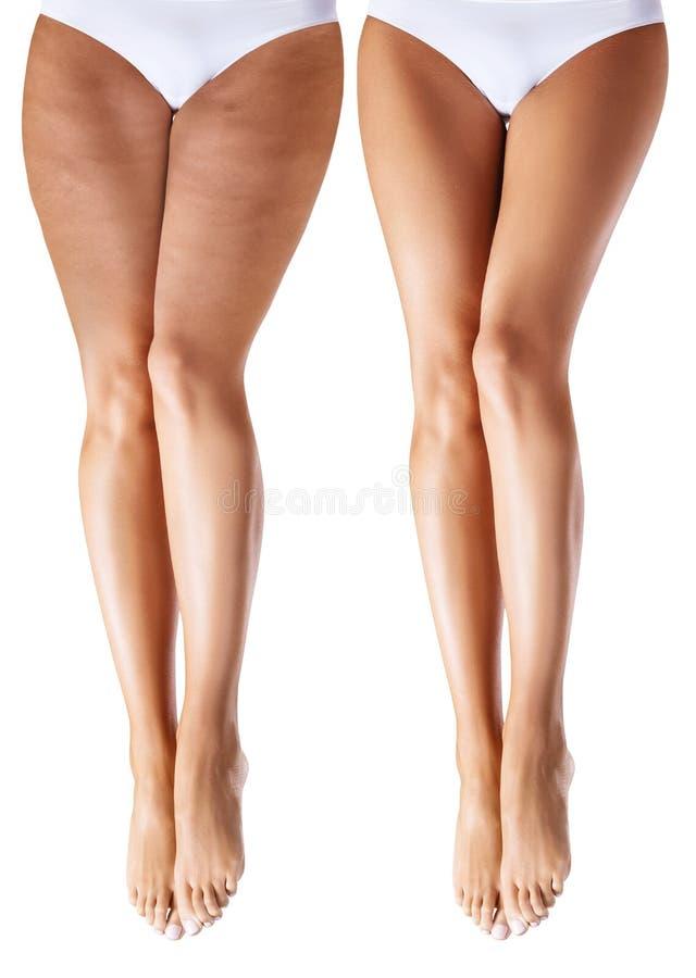 Piernas de la mujer antes y después del tratamiento fotografía de archivo