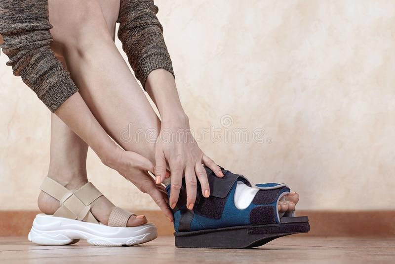 Piernas de la mujer, una en vendaje y bota ortopédica después del trauma o de la cirugía El resultado de usar los zapatos del tig fotografía de archivo libre de regalías