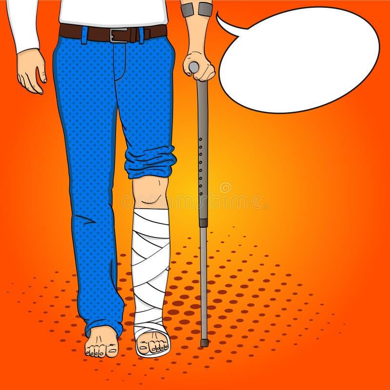 Piernas de los hombres del arte pop en yeso, bastón y ayuda La rehabilitación significa Estilo cómico de imitación del vector Bur libre illustration