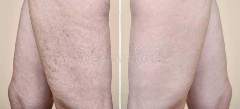 Piernas de una mujer con las varices y los capilares antes y después del tratamiento médico imagenes de archivo