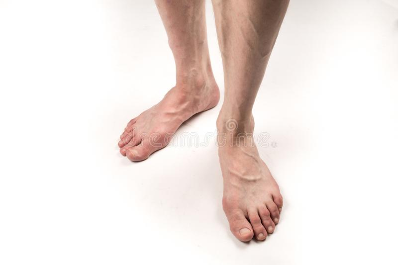 Piernas desnudas de un hombre con las varices en un fondo blanco imagen de archivo