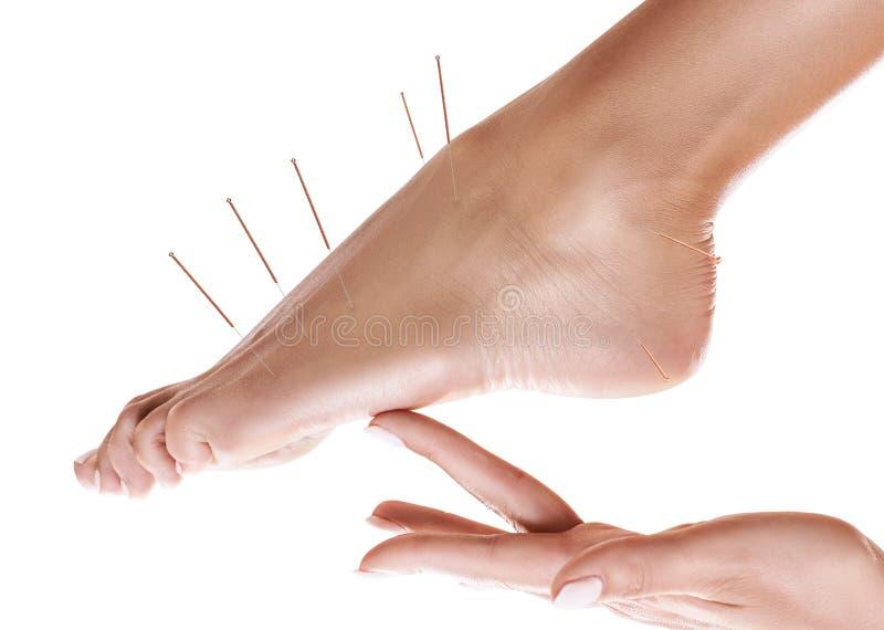 Piernas femeninas con las agujas de la acupuntura del parte movible fotos de archivo