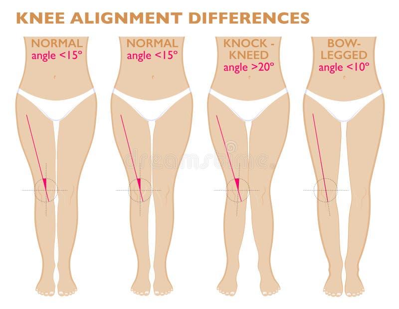 Piernas y ángulos de las rodillas, diversos tipos de formas de la pierna Varus normal y valgus libre illustration