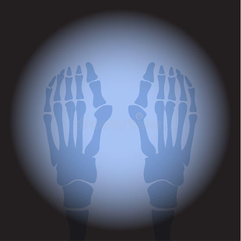 Pies del rayo x stock de ilustración