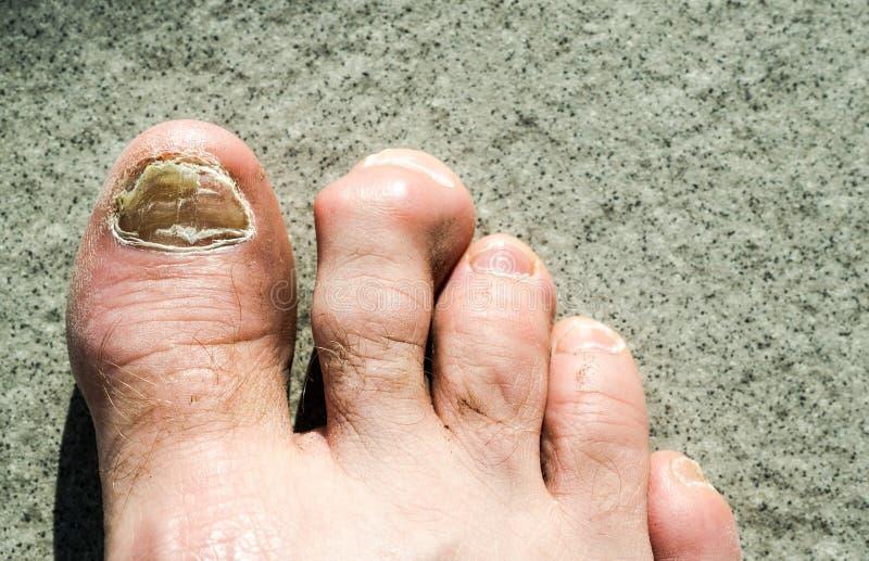 Pies feos y dedos del pie masculinos afectados por el hongo del clavo del dedo del pie y los hammertoes arhtritic fotografía de archivo
