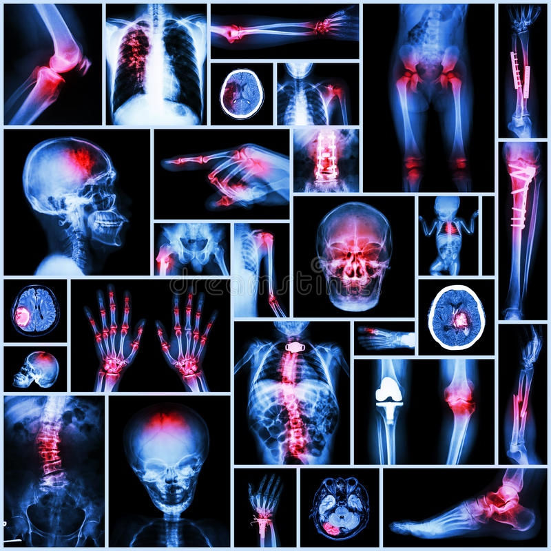 Pieza de la radiografía de la colección de la operación humana, ortopédica, enfermedad múltiple imágenes de archivo libres de regalías