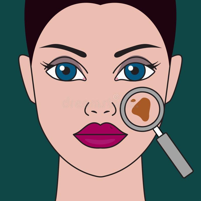 Pigment spot. On female face under magnifying glass. Vector illustration vector illustration