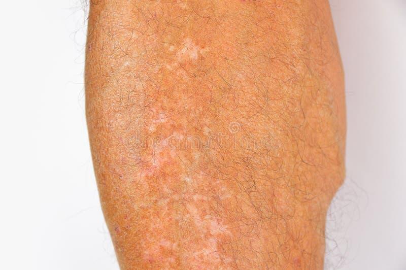 Pigmentacja na nogach zdjęcie stock