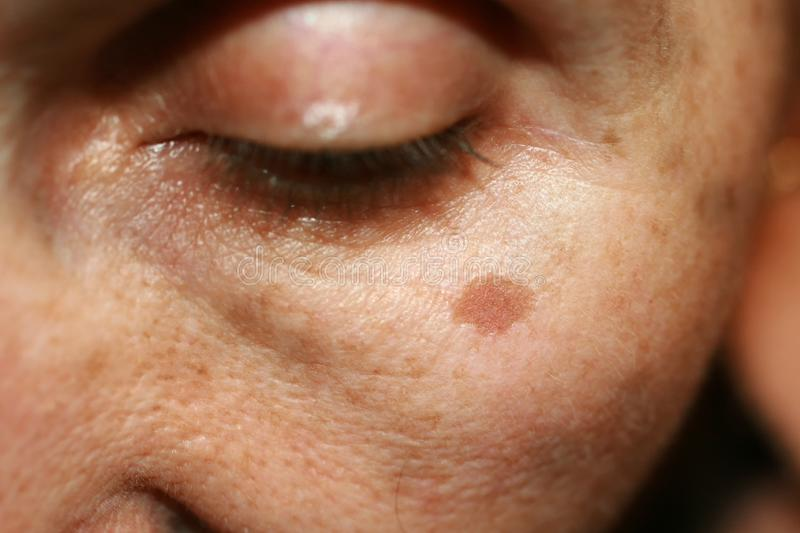 Pigmentation on the face. Brown spot on cheek. Pigment spot on the skin. Pigmentation on the face. Brown spot on cheek. Pigment spot on the skin stock photography