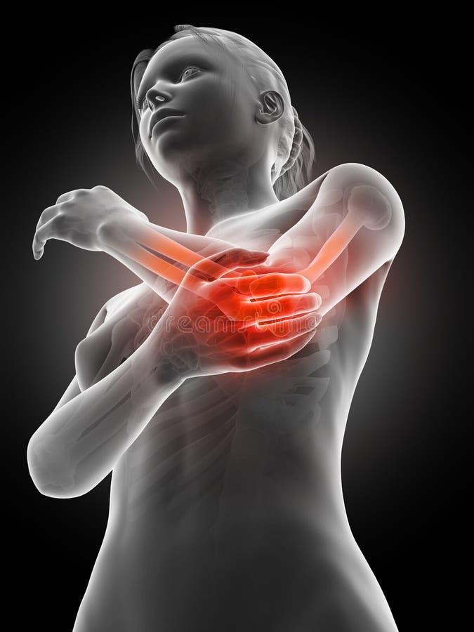 Pijn in de elleboogverbinding vector illustratie