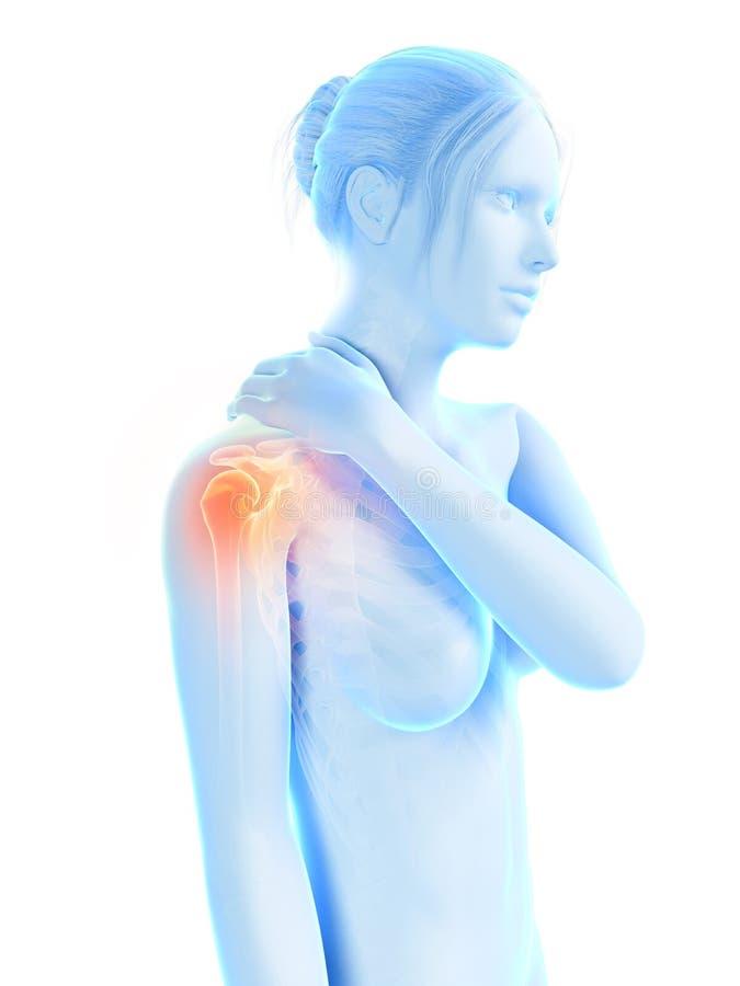 Pijn in de schouderverbinding stock illustratie
